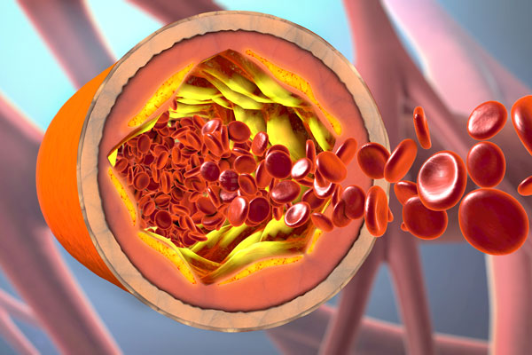 atherothrombosis-and-metabolic-disease